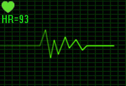 Tutorial: ECG Monitor Animation Effect In After Effects